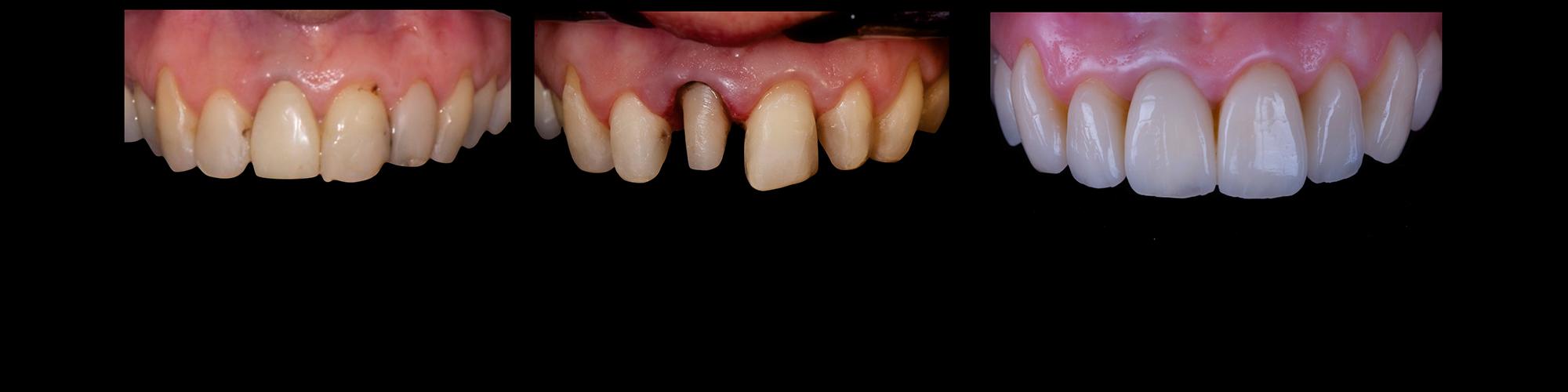 faccette denti
